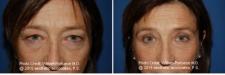 blepharoplasty30