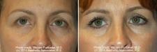 eyelid_10