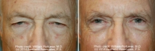 eyelid_17
