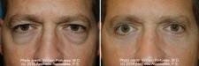 eyelid_20