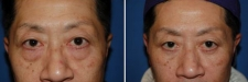 lower-blepharoplasty