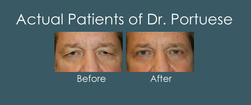 Before and After Photos of Eyelid Surgery