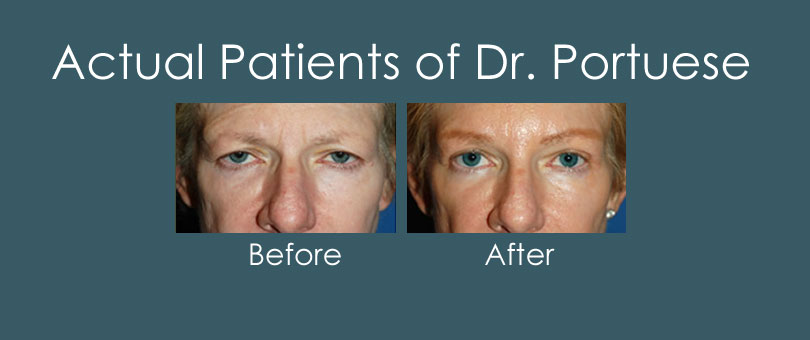 Before and After Photos of Blepharoplasty