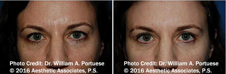 before and after eyelid rejuvenation